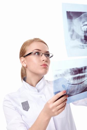 Dental Implants | Bone grafting x-ray