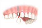 Dental Implant - Placement of Permanent Ceramic tooth
