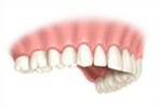Permanent Dental Implants - keep them clean and healthy