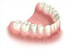 multiple dental implant - Implant crowns placed